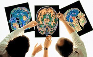 BrainScan-300x185
