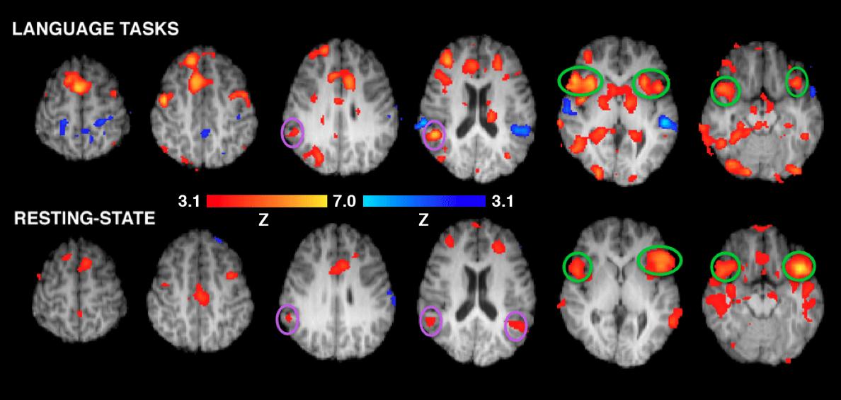 fMRI-brain-scans-neuromarketing